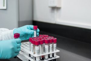 lab, experiment, test